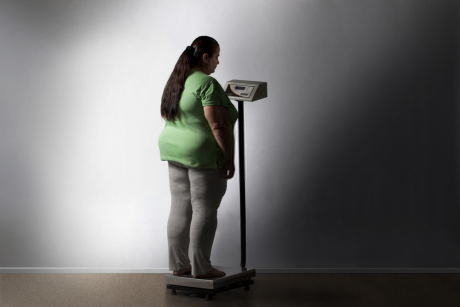 obesity - weight loss
